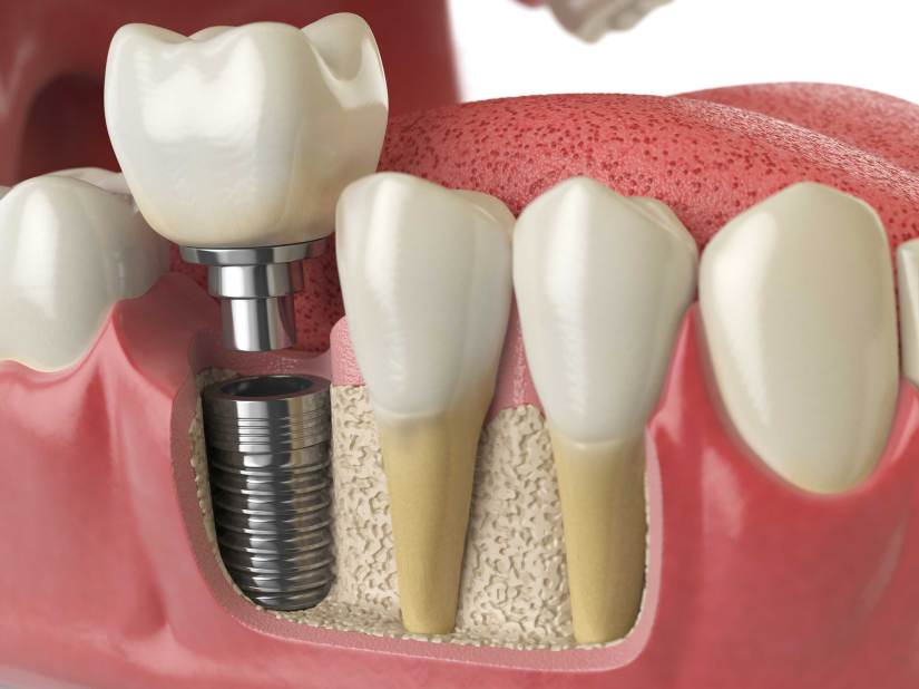 East_Sussex_Dental_Implants.jpg